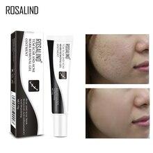 ROSALIND Acne Scar Treatment Face Cream Stretch Mark Remover Acne Pimple Spot Repairing Scar From Acne Skin Care Whitening Cream