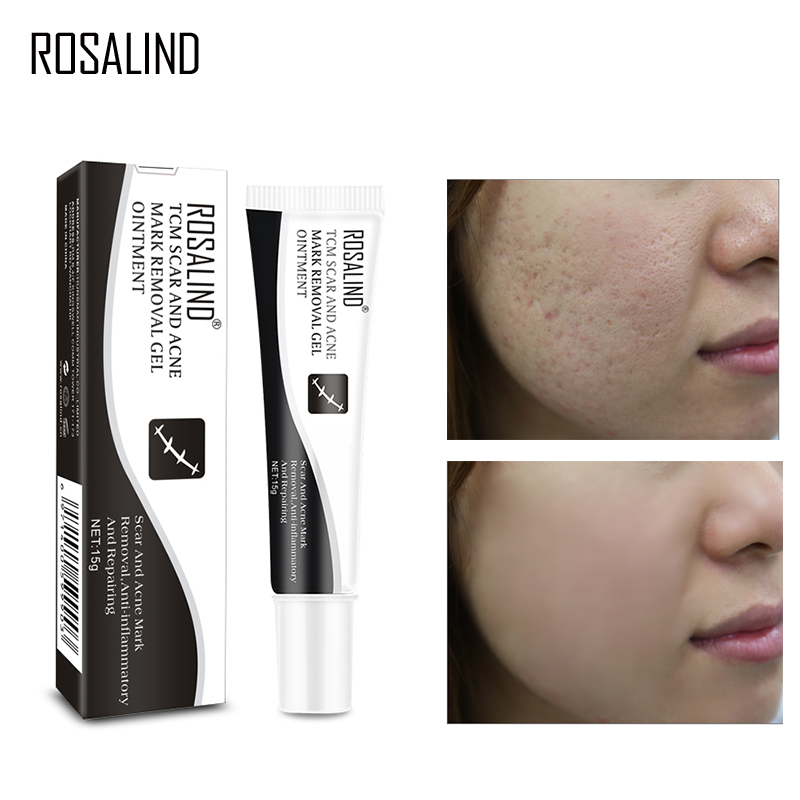 ROSALIND Acne Scar Treatment Face Cream Stretch Mark Remover Acne Pimple Spot Repairing Scar From Acne Skin Care Whitening Cream