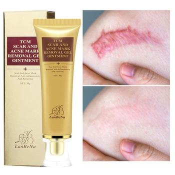 LANBENA Acne Scar Removal Face Cream Remove Acne Spots Scar Repair Stretch Marks Pigmentation Corrector Whitening Cream Skin недорого