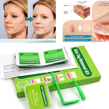 Medical Skin Tag Non Toxic Face Care Mole Wart Tool Skin Mole Wart Remover Skin Tag Removal Kit With Cleansing Swabs home use