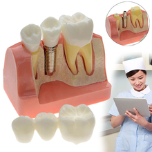 Tooth model dental demonstration teeth Removable model implant analysis Teaching Study Implant Dental Teach Dental Crown Bridge dental removable dental model dental tooth arrangement practice model with screw teaching simulation model oral materials