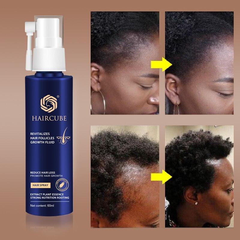 Esencja na szybki porost włosów naturalny ziołowy zabieg zdrowotny utrata włosów sprawia, że wzrost włosów jest dłuższy i grubszy produkty do pielęgnacji włosów 60ml