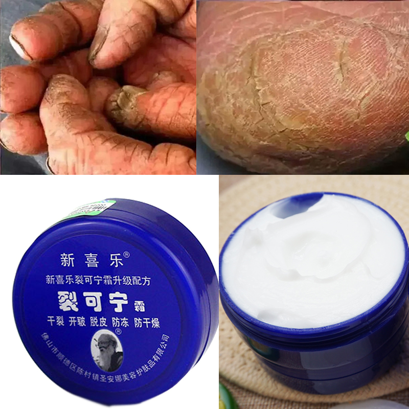 Chinese Foot Cream Herbs Crack Foot Cream Anti-Drying Heel Cracked Repair Cream Removal Dead Skin Hand Feet Care 33g