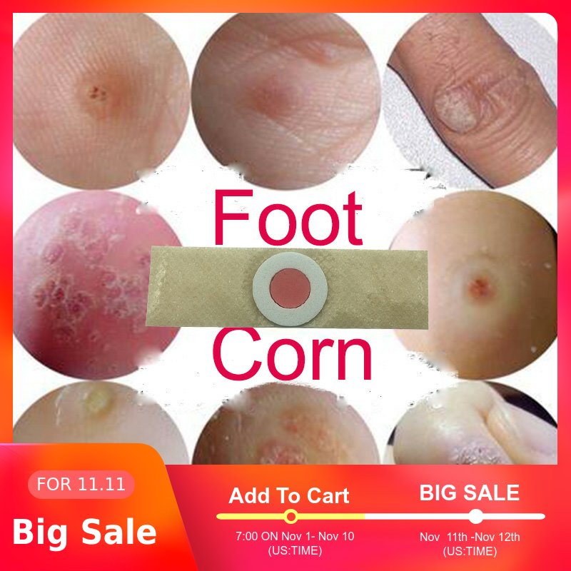 10pcs Foot Care Medical Plaster Foot Corn Removal Calluses Plaster Warts Thorn Plaster Health Care For Relieving Pain