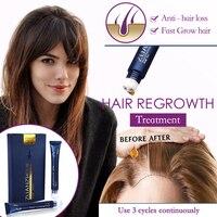 Сывороточная эссенция для роста волос, масло для ухода за волосами, массажное оборудование для кожи головы, беспроводное оборудование для у...