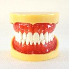 1pc modelo de estudo de ensino dental modelo padrão dentes removíveis goma dura cera fixa sem articulador modelo dental modelo oral