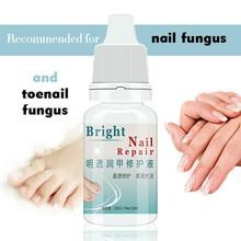Убивает бактерии и грибок ногтей грибок лечение крем onychomicosis Paronychia против грибковой инфекции ногтей 10 мл
