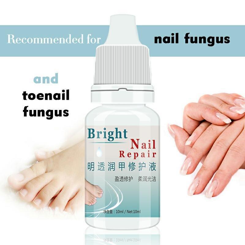 Kills  Bacteria And Fungus Nail Fungus Treatment Cream Onychomycosis Paronychia Anti Fungal Nail Infection 10ml
