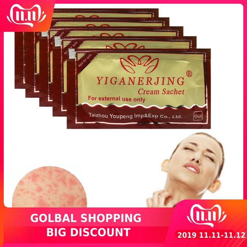 10pcs Original YIGANERJING Zudaifu Yellow Cream Skin Psoriasis Cream Dermatitis Eczematoid Eczema Ointment Treatment