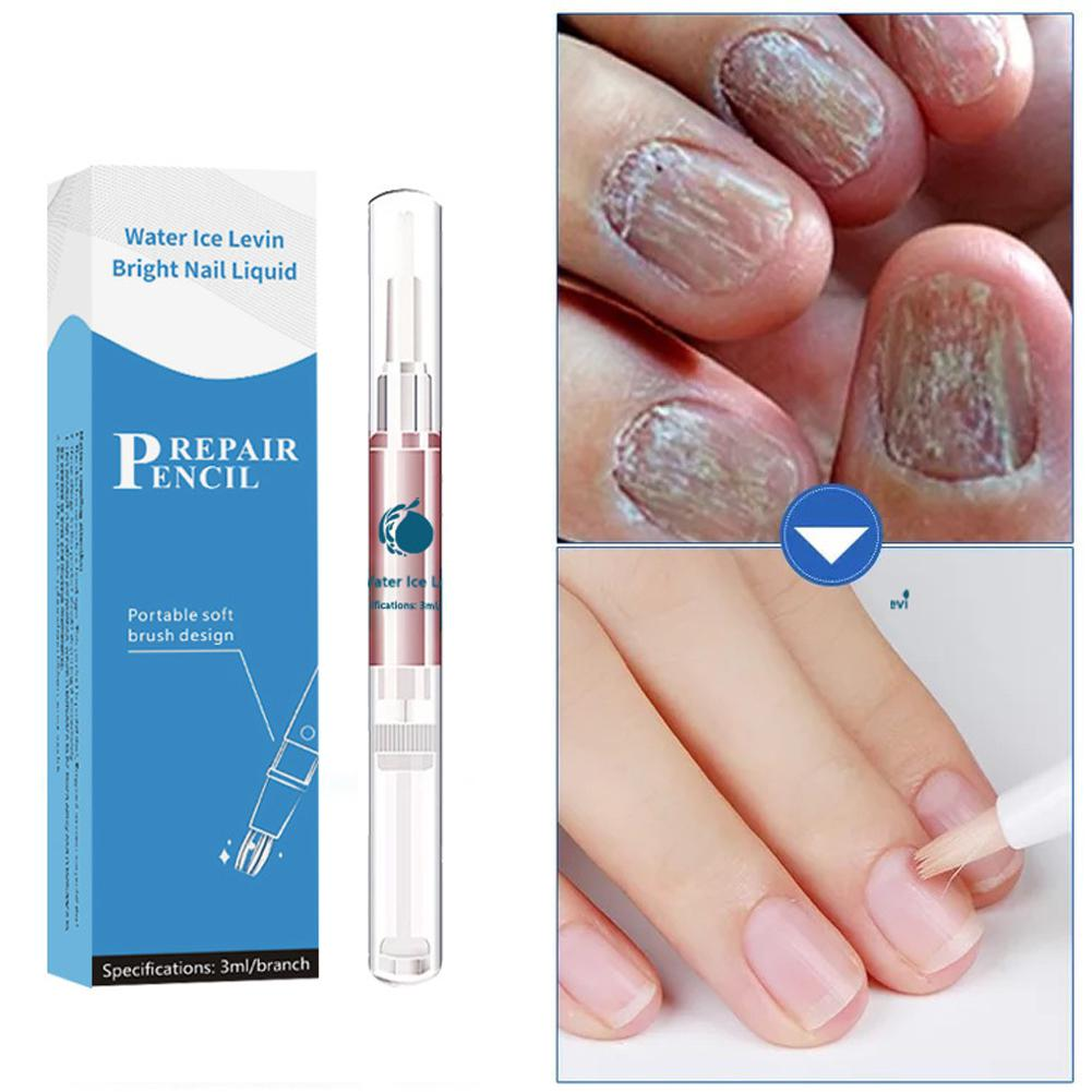 BellyLady 4pcs Nail Pen Onychomycosis Paronychia Infection Herbal Toe Finger Nails Health Beauty Accessories Nail Fluid
