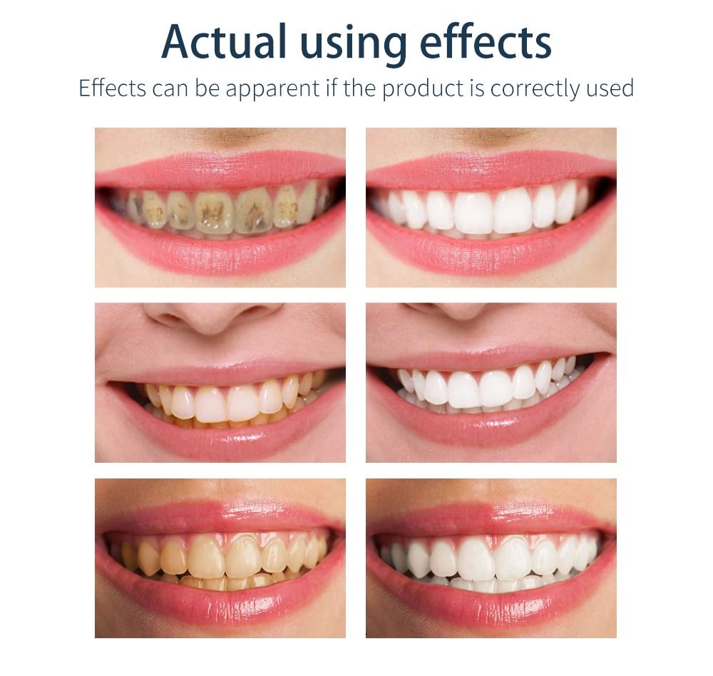 BAIMISS свежий Сияющий мусс для чистки зубов, зубная паста, отбеливание зубов, гигиена полости рта, удаляет пятна от налета, неприятное дыхание, стоматологический инструмент