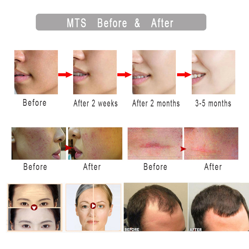 Derma-roller-DRS540-Mezoroller-Micro-Needle-Face-Skin-Care-Hair-Regrowth-Beard-Growth-Anti-Hair-Loss