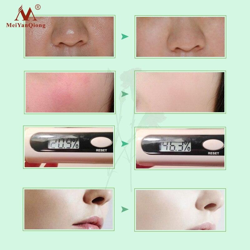 colageno rosto cuidados com a pele hidratante 02