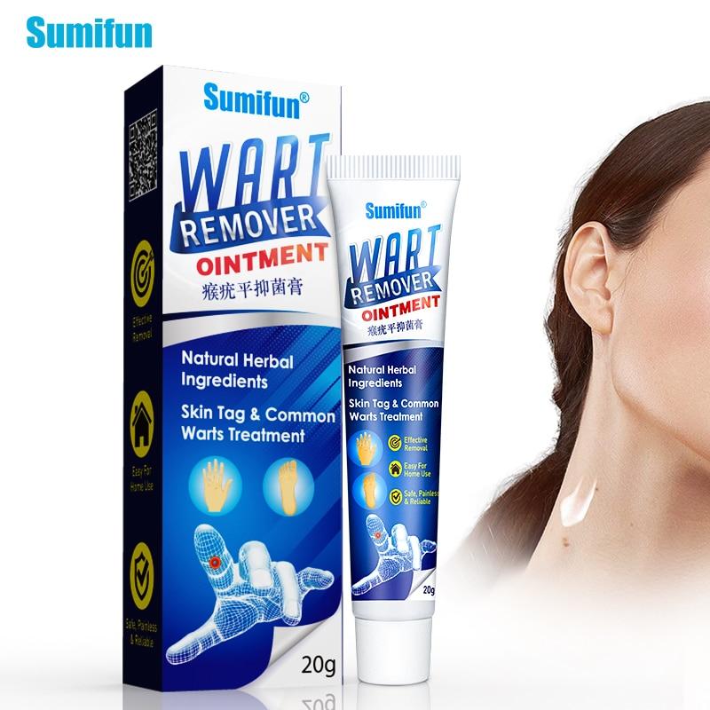 Warts treatment reviews - Consultații dermatologice în limba română