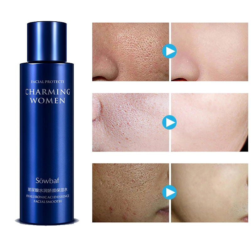 Nicotinamide Facial Toner Pore Minimizer Hyaluronic Acid Face Tonico 120ml Moisturizing Whitening Hidratante Skin Care Toners D