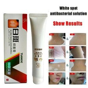 Medical White Spot Disease Cream Pigment Melanin Promoting Liniment Skin Vitiligo Leukoplakia Disease Treatment plaster