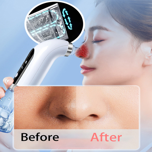 Blackhead remover nose face deep c