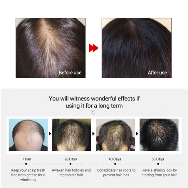 Fast powerful hair growth essence