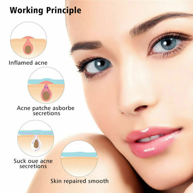 36pcs Patch Skin Care Face  Pimple Remover Sticker Patch Facial  Cover Patches Skin Tag 4