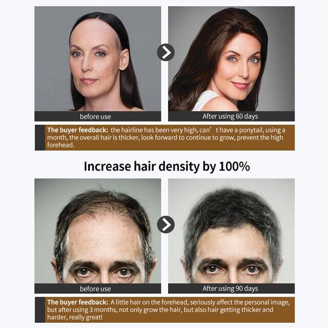 Hair Care Hair GrowthSpray Natural Hair Treatment  Loss Products Conditioner Essential Oil Liquid Health Care Beauty Dense Hair 2