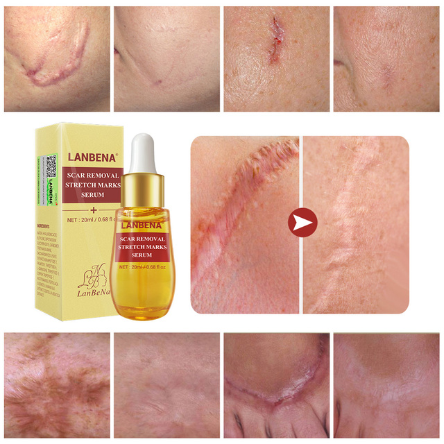 LANBENA Buy 3 Get 1 Gift Remove  Acne Scar Serum Acne Treatment Remover Stretch Marks Anti 3PCS+Acne Scar Removal Cream