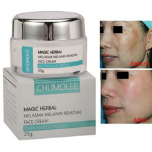 CHUMOLEE Powerful whitening Freckle cream 25g fast Remove speckle melasma pigmen