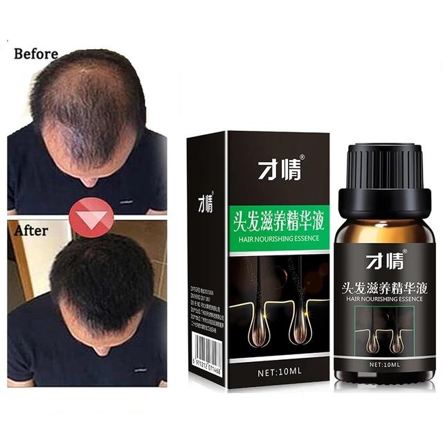 Esencja wzrostu włosów profesjonalny Salon fryzjerski fryzury keratyny do pielęgnacji włosów produktów do stylizacji produkty przeciw wypadaniu włosów gęste Sunburst do włosów tanie i dobre opinie NoEnName_Null 20176532 CN (pochodzenie) Produkt wypadanie włosów pure plant natural extract 10ML Anti-off germinal tough anti- broken hair anti-off thick Hair