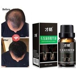 Produtos de estilo de cabelo anti perda de cabelo produtos de cabelo denso sunburst cabelo