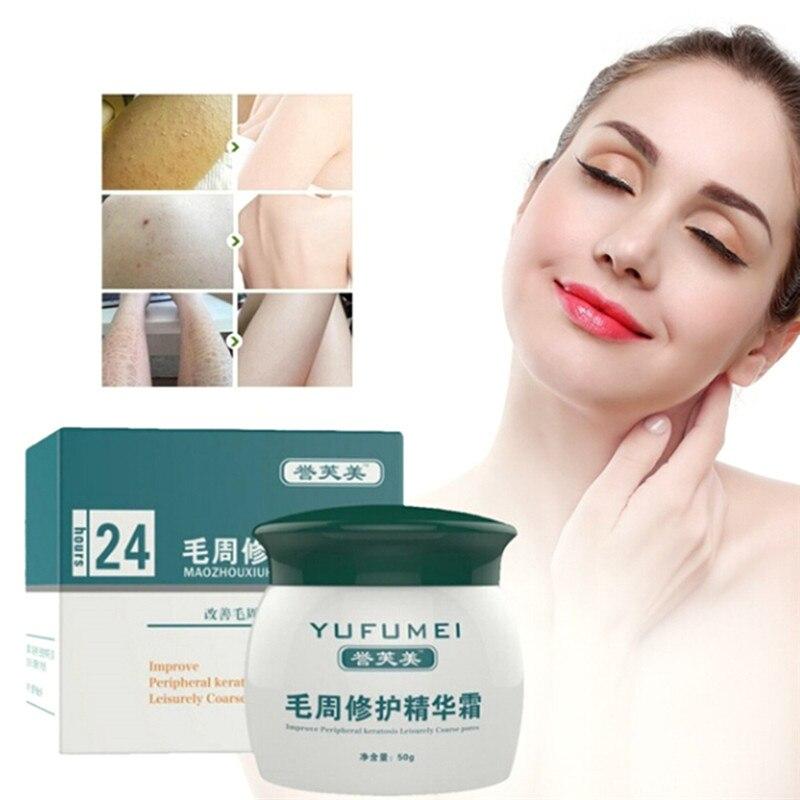 50g cura della cheratosi pilery/Kp/pelle di pollo lozione per il corpo crema per la riparazione della pelle cura della pelle essenza idratante e nutriente 2