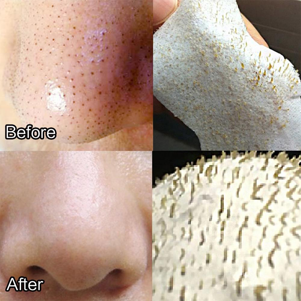Blackhead Removal Nose Pore Strips Acne Treatment Blackhead Removal Deep  Cleansing Pore Strips for Nose Skin Care|Home Use Beauty Devices| -  AliExpress