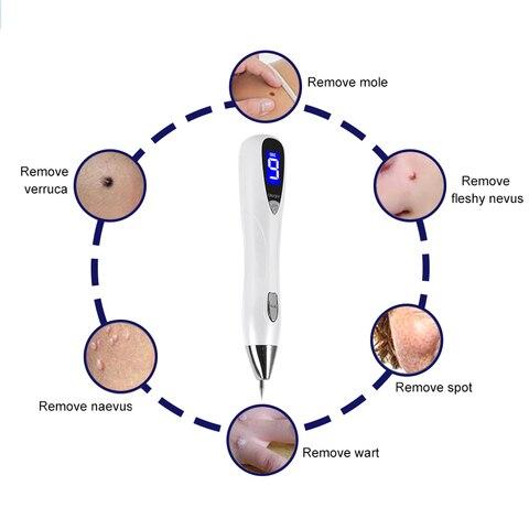 com a pele laser mole tatuagem sarda remocao caneta