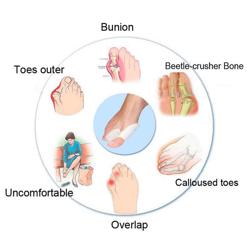 2 個シリコーンゲル足指セパレーター親指外反母趾プロテクターバニオンアジャスター外反母趾プロガード足ケア