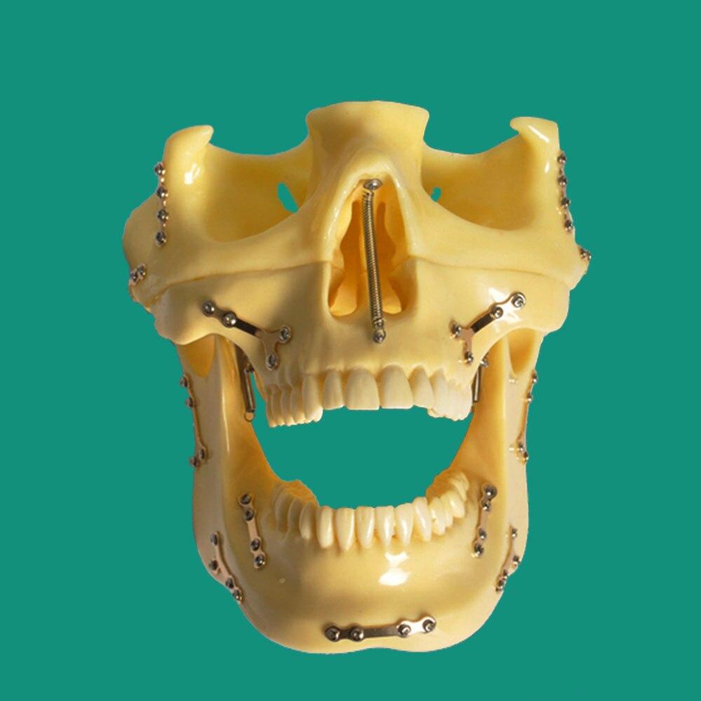 1 peça dental ortodôntico implantar modelo de