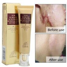 Крем для удаления шрамов от акне, восстанавливающий крем для лица, лечение акне и пятен ТСМ, мазь 30 г, забота о здоровье кожи