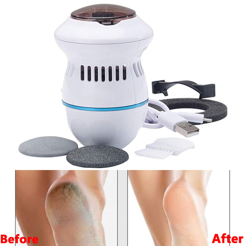 Drop Shipping Hot Sale Pedi Remover Vac Rechargeable Electronic Foot Files Clean Tools Feet Care Perfect For Hard Cracked Skin