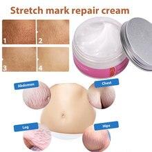 Useful Maternity Skin Repair Cream Beauty Health Care Postpartum Gifts 100g Non-toxic Elegant Postpartum Repair Cream