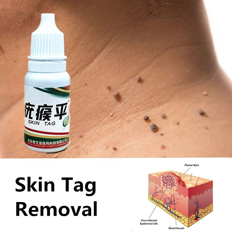 NEW 2020 Skin Tag Remover 12 Hours Tu Kill Medical Tu Kill Remover Skin Tag Mole & Genital Wart Remover Foot Corn Removal