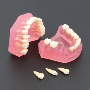 Image 3 - Dental  Standard Model with Removable Teeth #4004 01 Dental Study Teach Teeth Model