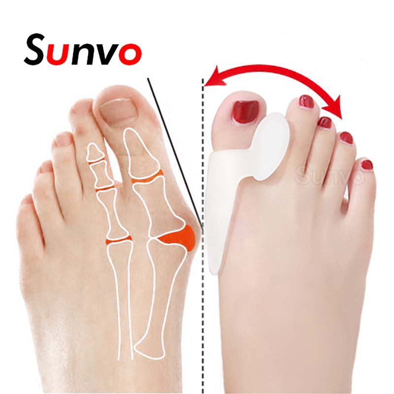 2Pcs Silicone Toe Separator Bunion Splint Hallux Valgus Orthosis Correction Overlapping Spreader Foot Protector Inserts