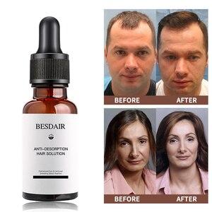 Image 4 - Huile Anti perte capillaire, produit de traitement pour la croissance capillaire, sérum naturel pour épaissir les cheveux, Solutions de soins