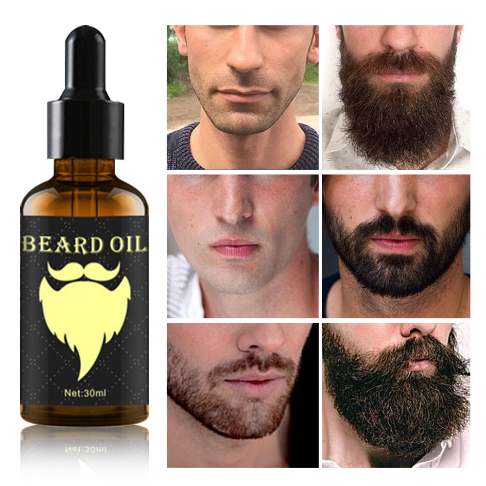 Beard Growth Oil 100% Natural Organic in Accra -Ghana 2