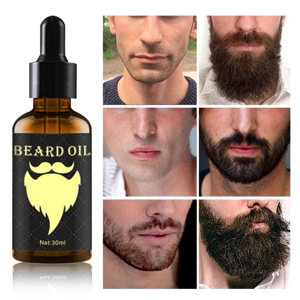 Beard Growth Oil 100% Natural Organic in Accra -Ghana 2