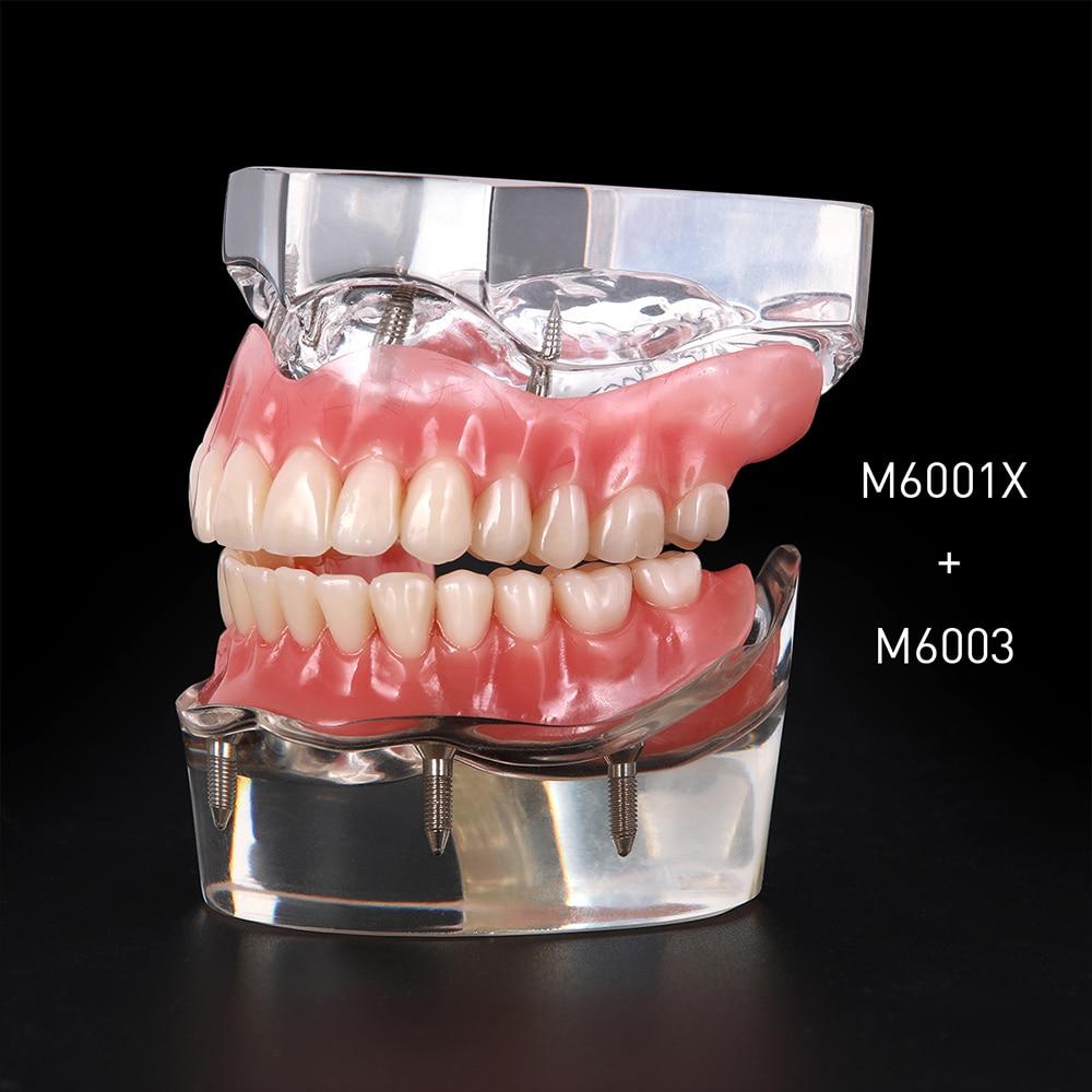 Dental Implant Restoration Teeth Model Removable Bridge Denture Demo Disease Teeth Model With Restoration Bridge Teaching Study