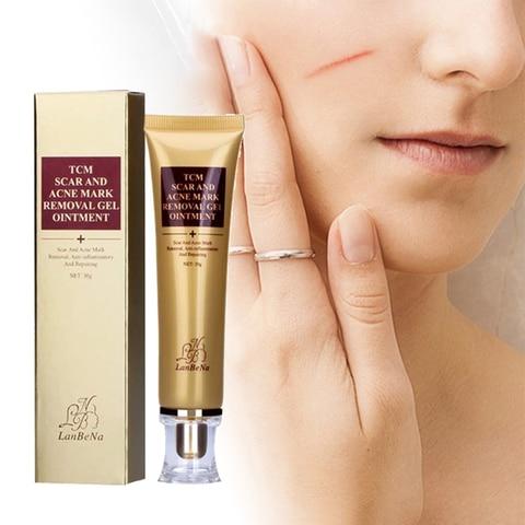 Whitening Cream Lanbena Acne Scar Removal Cream Treatment Cicatriz
