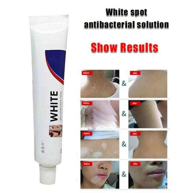 20g medicina china blanco punto crema pigmento melanina promoción linimento piel Vitiligo lekoplakia tratamiento