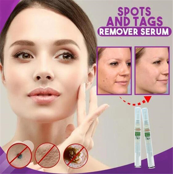 Spots and Tags Remover Serum Pigment Corrector Whitening Pen Face Freckle Remove Anti Acne Scar Spots Melanin Blemish Cream 1
