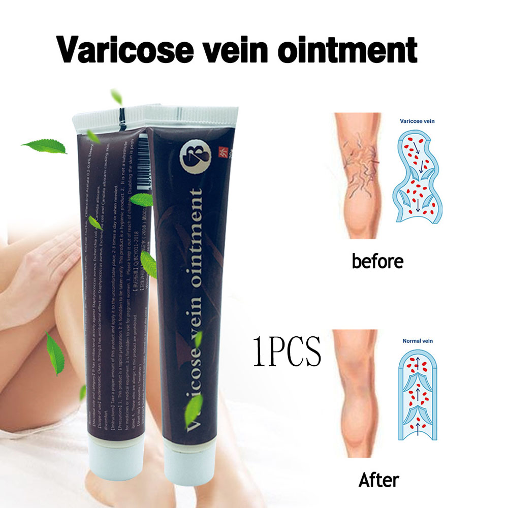 Varicose Veins Treatment Cream Effective Cure Vasculitis Phlebitis Veins Pain Profession Varicosity Angiitis Ointment Healthcare
