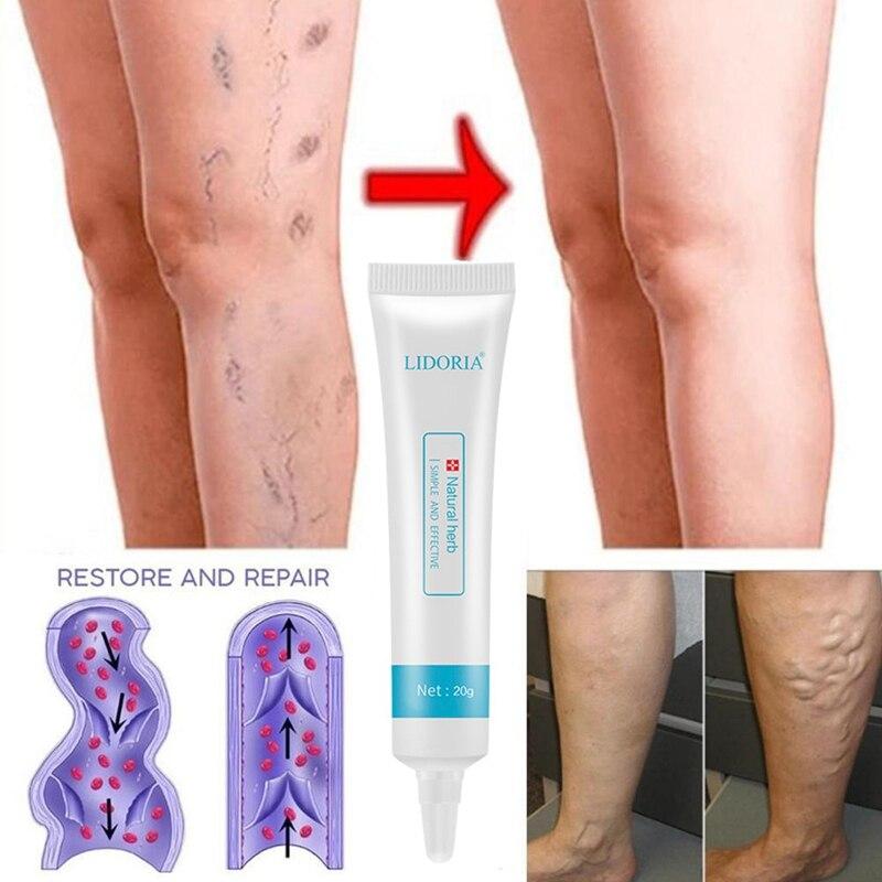 qué es la vasculitis en las piernas