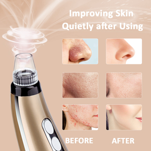 Image 3 - 5 Suction Power Vacuum Blackhead Remover Pore Cleaner Acne Extractor Tool LCD Display Face Exfoliating Machine Beauty Device