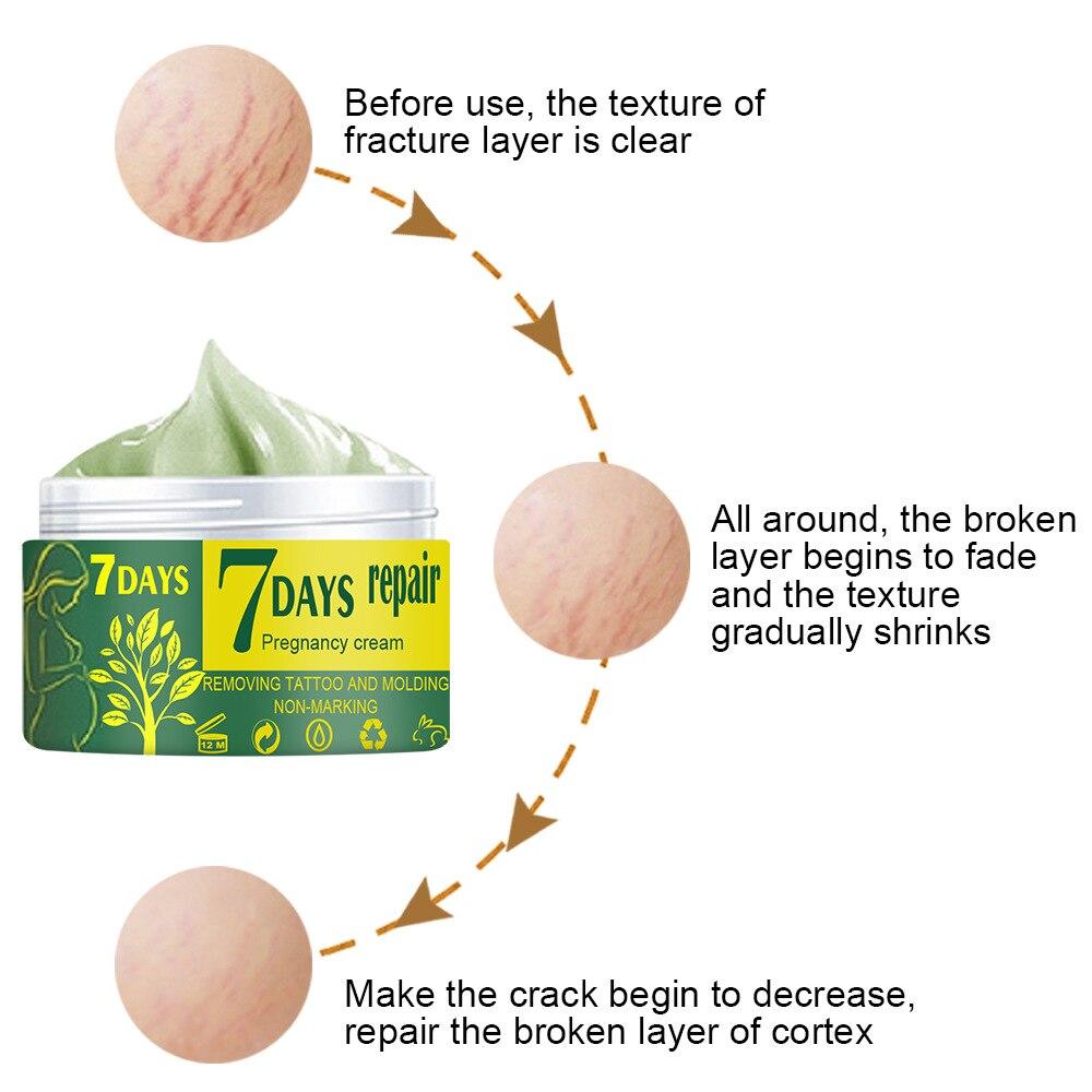 Segni di gravidanza che riparano la crema per il corpo smagliature crema per la rimozione della cicatrice dell'irritazione idratante rassodante lozione antirughe per la cura della pelle 5
